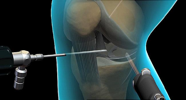 Arthroscopy of Knee: Reasons, Procedure & Benefits